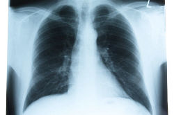 X ray photograph of person ribcage an 4.jpg