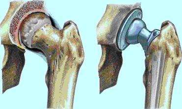 olikiarthroplastiki1