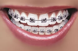 new42_toothbrace.jpg