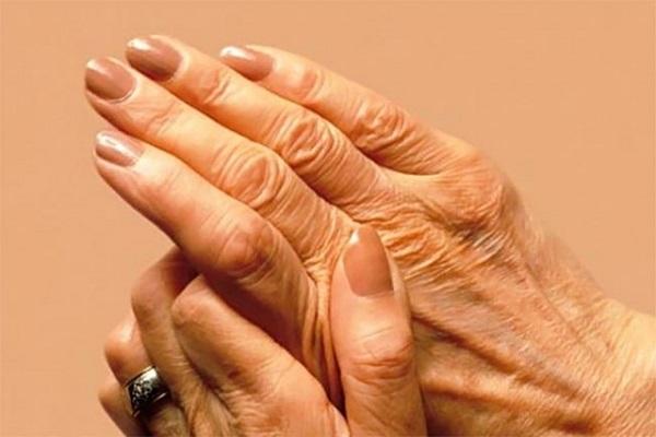 images_revmatoidis-arthritis-600.jpg