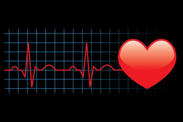 images_1632017_Irregular_Heartbeat.jpeg