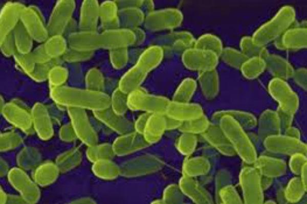 images_442017_2_e-coli.jpg