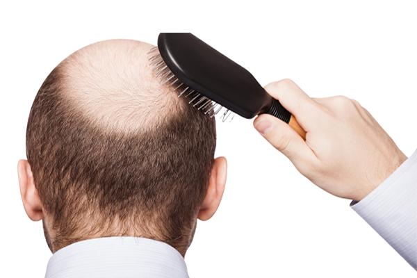 images_262017_2_Hair-Transplant-PRP.jpg