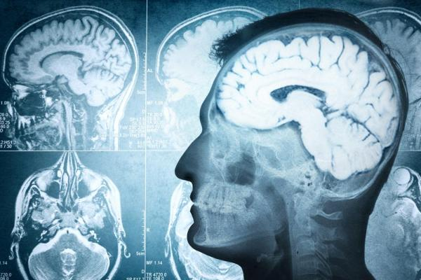 images_1282017_Scientists-Memories-lost-to-Alzheimers-may-be-recoverable.jpg