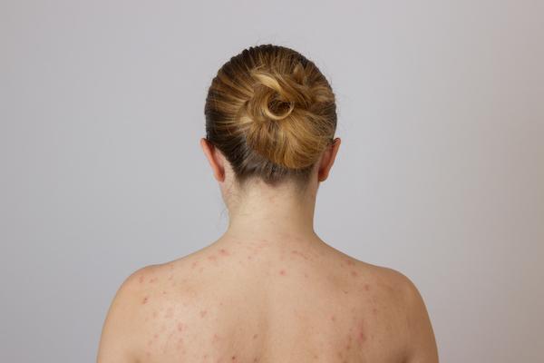 images_2882017_back-acne-hormones.jpg