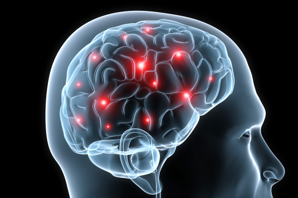 images_992017_brain-injury.jpg
